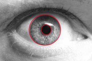 image of eye with circle around iris.